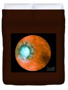 Retina Infected By Syphilis Duvet Cover