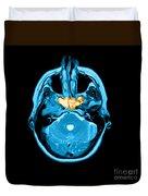 Sinusitis Duvet Cover