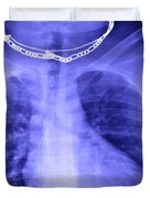 X-ray Of Enlarged Heart Duvet Cover