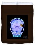 Mri Of Brain Avm Duvet Cover