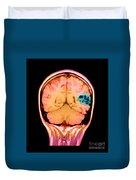 Mri Of Brain Avm Duvet Cover