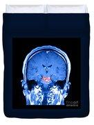 Mri Brainstem Cavernous Malformations Duvet Cover