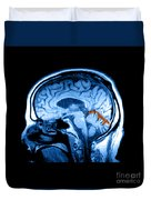 Mri Of Alcoholism Related Vermian Duvet Cover