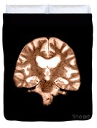 Mri Of Brain With Alzheimers Disease Duvet Cover