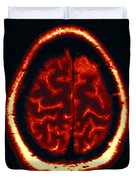 Mri Of Normal Brain Duvet Cover
