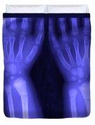 Broken Wrist Duvet Cover by Ted Kinsman