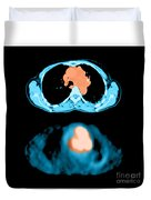 Metastatic Lymph Node Mass Duvet Cover