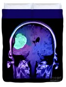 Right Sided Meningioma Duvet Cover