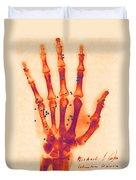 X-ray Of Gunshot In The Hand Duvet Cover