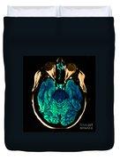 Mri Of Normal Brain Duvet Cover