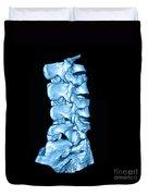 3d Ct Of Lumbar Spine Duvet Cover