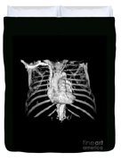 3d Cta Of Heart And Chest Duvet Cover by Medical Body Scans
