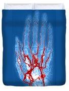 Hand Arteriogram Duvet Cover
