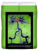 Cerebral Angiogram Duvet Cover