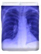 Chest X-ray Duvet Cover