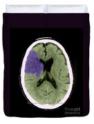 Ct Of Stroke Duvet Cover