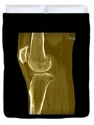 Knee Showing Osteoporosis Duvet Cover by Medical Body Scans