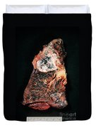 Lung Cancer Duvet Cover