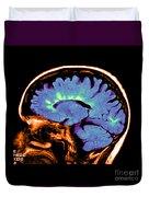 Mri Of Multiple Sclerosis Duvet Cover