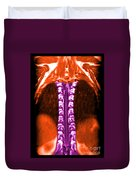 Mri Of Normal Thoracic Spinal Cord Duvet Cover