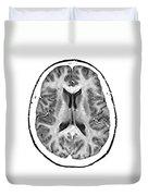 Normal Cross Sectional Mri Of The Brain Duvet Cover