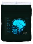 Radiology Angiography Of Brain Duvet Cover