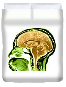 Sagittal View Of An Mri Of The Brain Duvet Cover