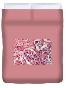 Thyroid Lm Duvet Cover