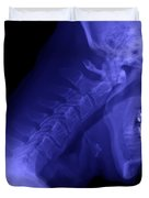 X-ray Of A Cervical Spine Duvet Cover