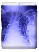 X-ray Of A Pacemaker Duvet Cover