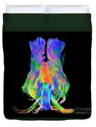 Brain Fiber Tracts, Dti Scan Duvet Cover