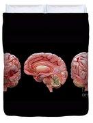 3d Rendering Of Human Brain Duvet Cover