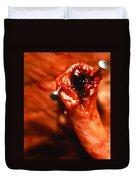 Blocked Artery. Duvet Cover