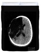 Brain Stroke, Ct Scan Duvet Cover
