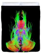 Fiber Tracts Of The Brain, Dti Duvet Cover