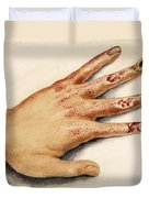 Hand With Roentgen Ray X-ray Duvet Cover