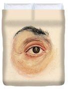 Melanoma Of Iris, Medical Illustration Duvet Cover
