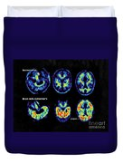 Normal And Alzheimer Brains, Pet Scans Duvet Cover