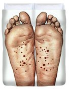 Psoriasis Of Feet, Illustration Duvet Cover