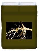 Root Nodules On Soya Plant Duvet Cover