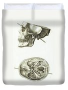 Skull With Head Wound, Illustration Duvet Cover