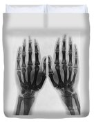 X-ray Of Two Normal Hands, 1896 Duvet Cover