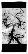 Angiogram Of Embolus In Cerebral Artery Bath Towel