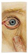 Globular Cyst On Eye, Illustration Bath Towel