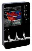 Carotid Duplex Ultrasound Exam Portable Battery Charger