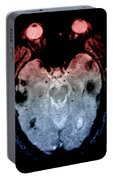 Mri Of Amyloid Angiopathy Portable Battery Charger