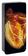 Colored Arteriogram Of Arteries Of Healthy Heart Portable Battery Charger