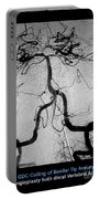 Cerebral Angiogram Portable Battery Charger