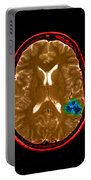 Mri Of Brain Avm Portable Battery Charger
