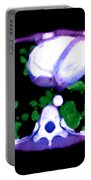 Metastatic Disease Of The Lungs Portable Battery Charger